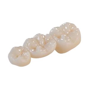 Ellipse Dentale - Conjointe - Bruxzir