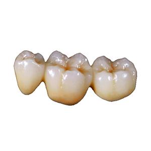 Ellipse Dentale - Conjointe - Céramique sur Zircone