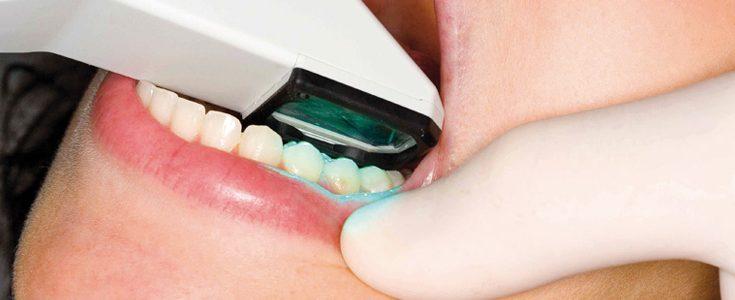 Ellipse Dentale - Empreintes dentaires numériques