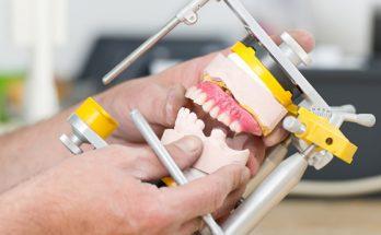 Ellipse Dentale - Implants Adjointes