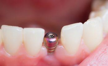 Ellipse Dentale - Implants Dentaires