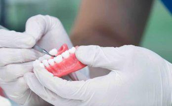 Ellipse Dentale - Tarifs Adjointes